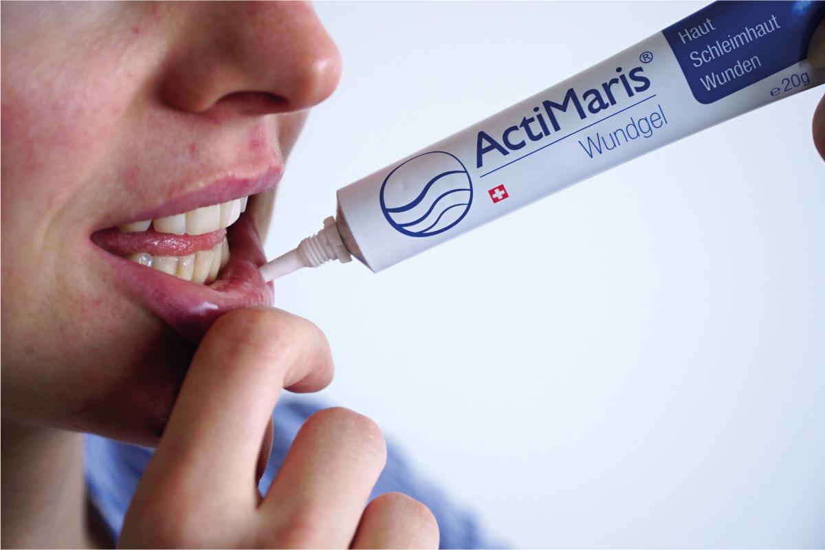 ActiMaris Gél aplikácie na peru