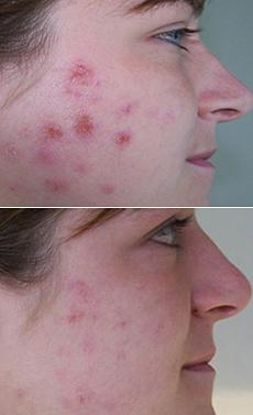 Akné na tvári
