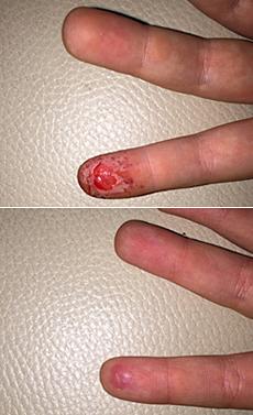 Strhnutá koža na prste