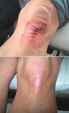 Pooperačná rana na kolene