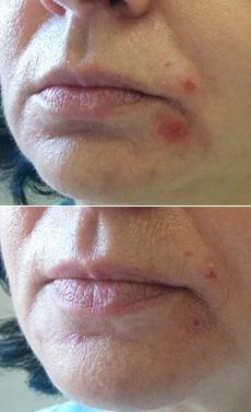 Nehojace sa akné na tvári