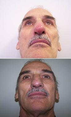 Zápal mäkkého tkaniva na nose