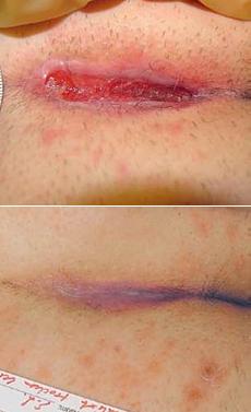 Pooperačná rana nad kostrčou – sekundárne hojenie