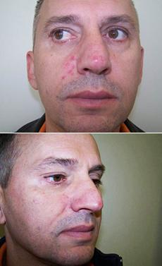 Furunkulóza (vredy) na tvári