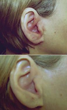 Akútna infekcia ucha Beta-hemolytickým streptokokom A